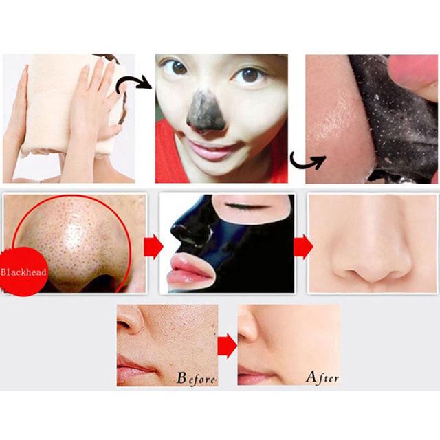 5pcs Blackhead Face Mask Remover Nose Black Mask Mud Deep Cleansing Acne Treatment Pore Cleanser Mask Black Head Removal Pilaten