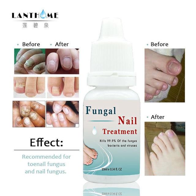 Lanthome fungal Tratamientos de uñas pie Cuidado uñas esencia ...