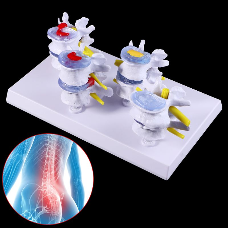 Medical Props Model 1 Set Human Lumbar Lesion Spine Statue Display Model Medical Teaching Learning Tool