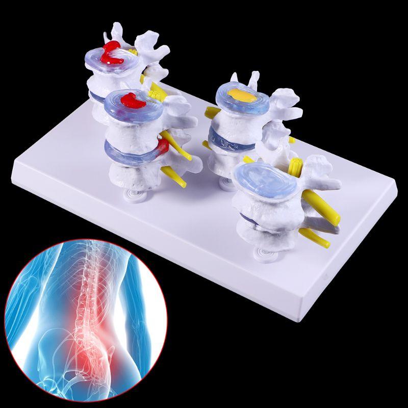 Medical Props Model 1 Set Human Lumbar Lesion Spine Statue Display Model Medical Teaching Learning Tool