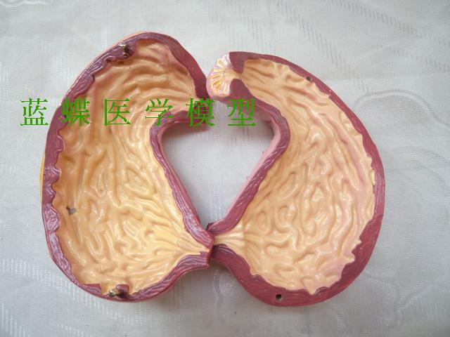 Stomach and profile model, stomach anatomy model, stomach model, stomach structure model arteriovenous structure model arterial and venous anatomy model vascular model