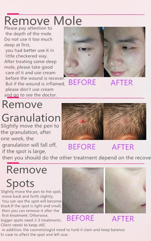 Laser Freckle Removal Machine Smärtfritt Spot Mole Tattoo Wart - Sjukvård - Foto 6