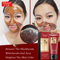 Blackhead Whitening Face Mask Blackheads Acne Treatment Exfoliator Anti Wrinkle Blackhead Spot Removal Skin Care Facial Mask