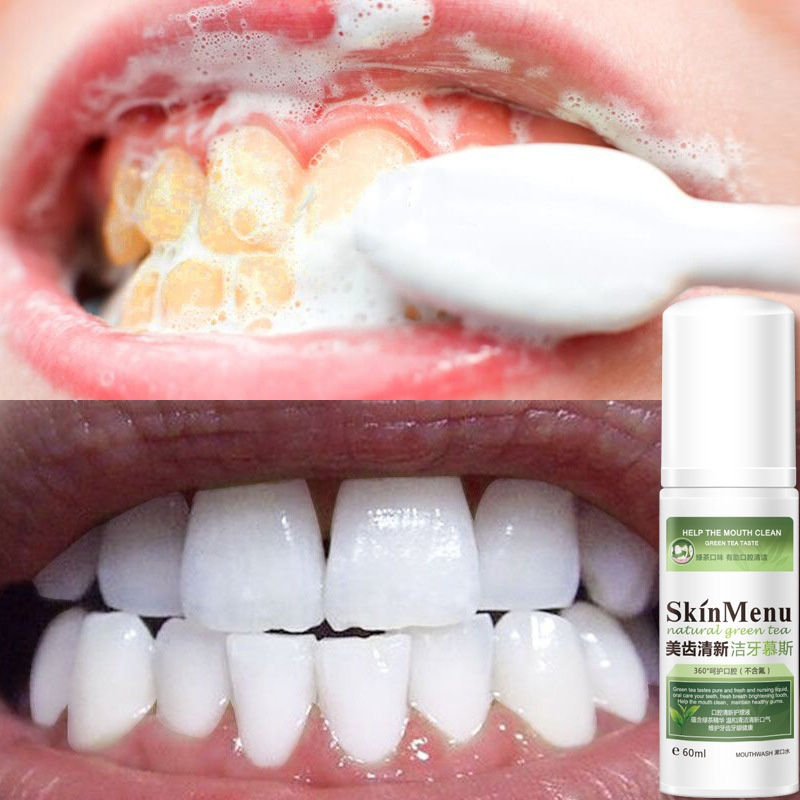 Teeth Cleaning Mousse Teeth Whitening Fresh Breath Tooth Stains Remove Oral Cleaning Foam Whitening Toothpaste 60ml Recommend