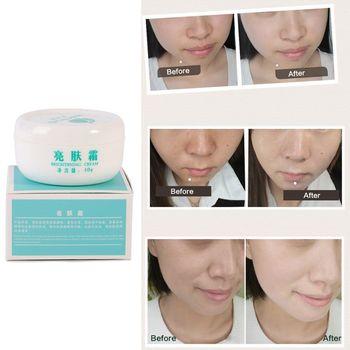 Rozjaśniania wybielanie skóry krem wybielający usunąć ciemne plamy skóry leczenie krem anti rugas przydatne