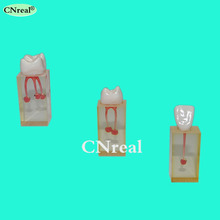 3 pcs/set RCT (Root Canal Therapy) Practice Model for Dental Teaching & Practising