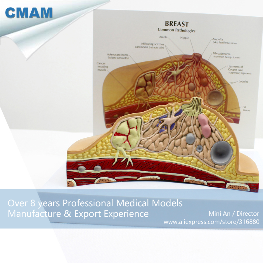 12461 CMAM-ANATOMY23 Female Breast Common Pathologies Cross-section Model ,1 Part, Anatomy Models > Female Model 12461 cmam anatomy23 breast cancer cross section training manikin model medical science educational teaching anatomical models
