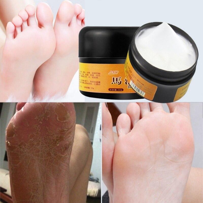 Лошадь масло ног рук морозостойкий крем лечение сухой кожи пятки потрескавшиеся шелушение Исцеление красота средства по уходу товары коже...