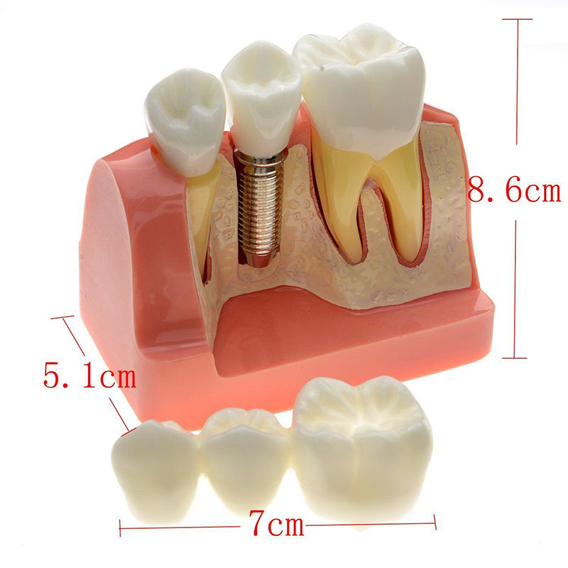 Dental Demonstration Teeth Model Implant Analysis Crown Bridge 2017 NEW Sale!!! new arrival high quality dental implant demonstration bracket simulation teeth model teeth removable