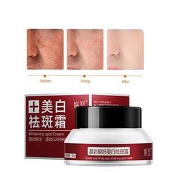 Freckle Cream Skin Care Whitening Anti-aging Moisturizing Cream Melanin Removing Freckle Speckle Firm Skin Care Creams Face Care
