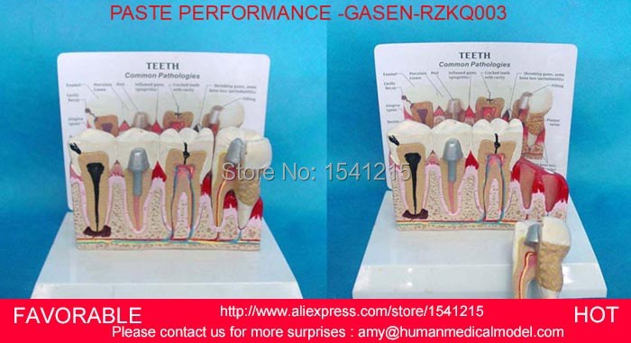 PATHOLOGICAL DENTAL MODEL TOOTH TEETH DENTIST,ORAL DENTAL TEACHING MODEL PASTE PERFORMANCE WITH EXPLANATION BOARD-GASEN-RZKQ003 soarday children primary teeth alternating transparent model dental root clearly displayed dentist patient communication