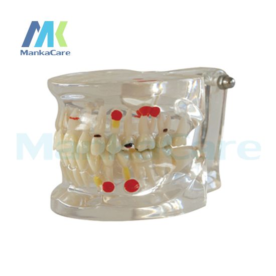 Manka Care -  Half side can be temovable Model Oral Model Teeth Tooth Model