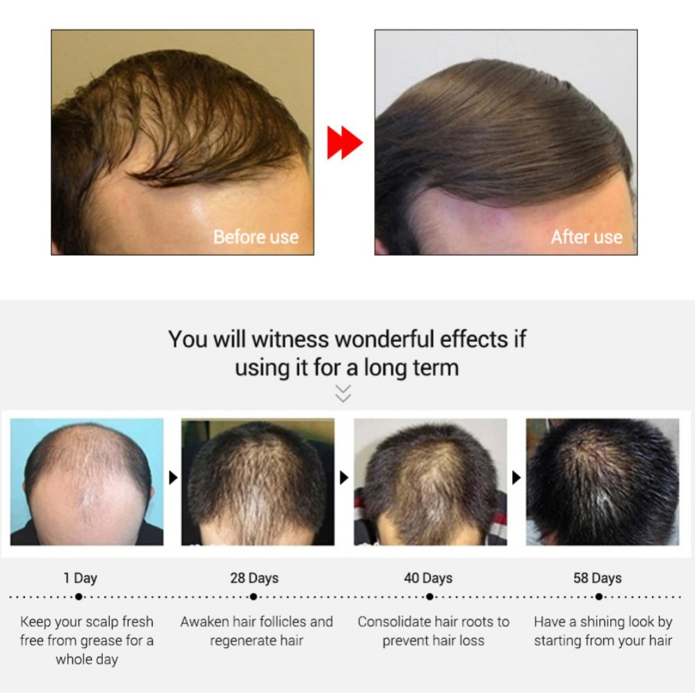 Powerful Hair Growth Essence Hair Loss Products Essential Oil Liquid Treatment Preventing Pomade Loss Hair Care Product 3
