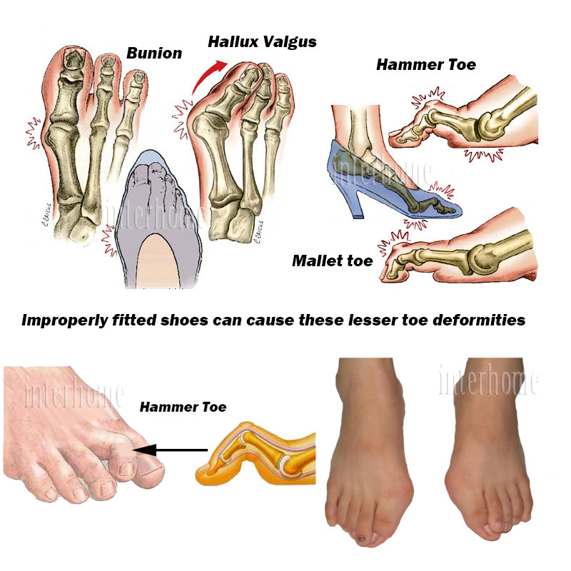 Single Hole Hammer Toe Orthotics Hallux valgus Bunion or Mallet Toes ...