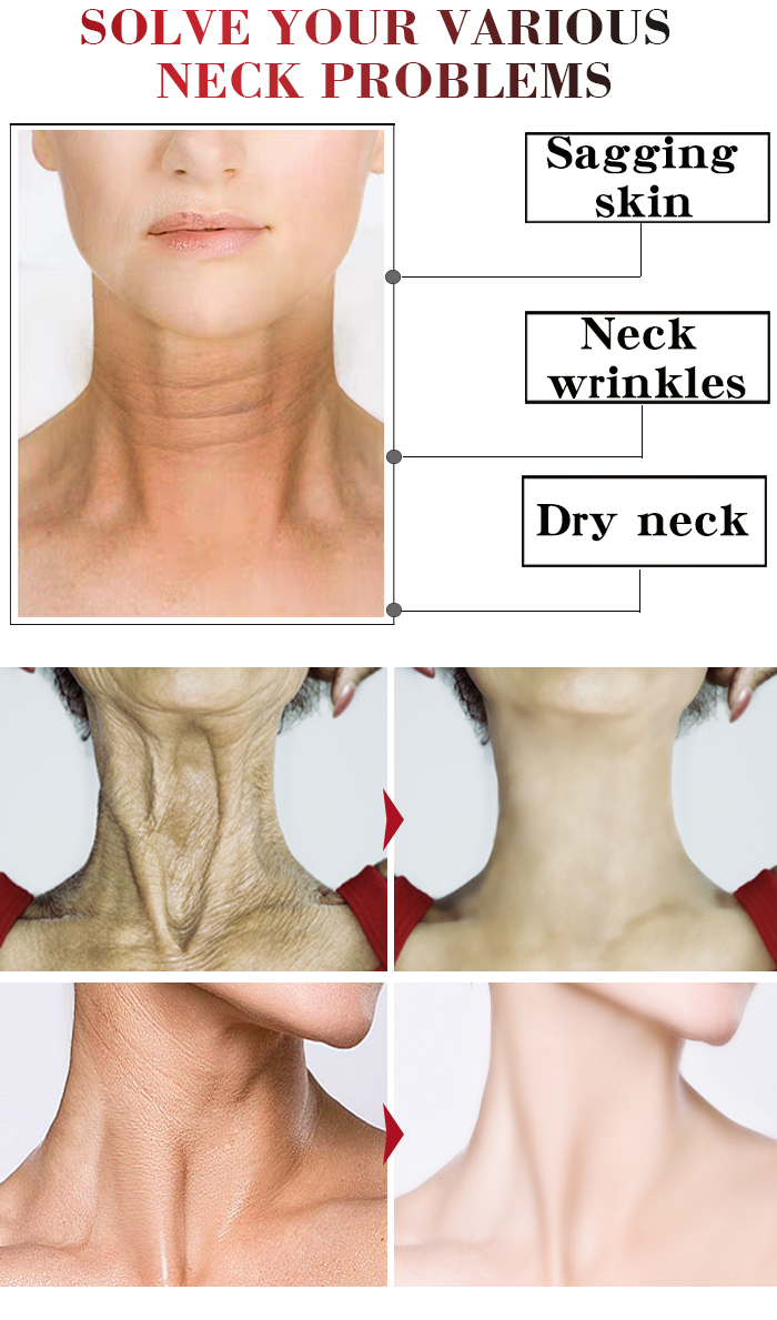 Anti-Aging Skin Care Neck Care Face