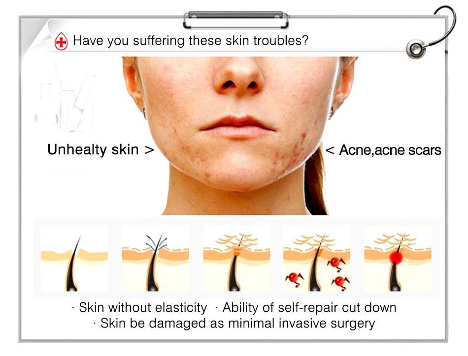 tratamento fator de reparo liofilizado pó rosto