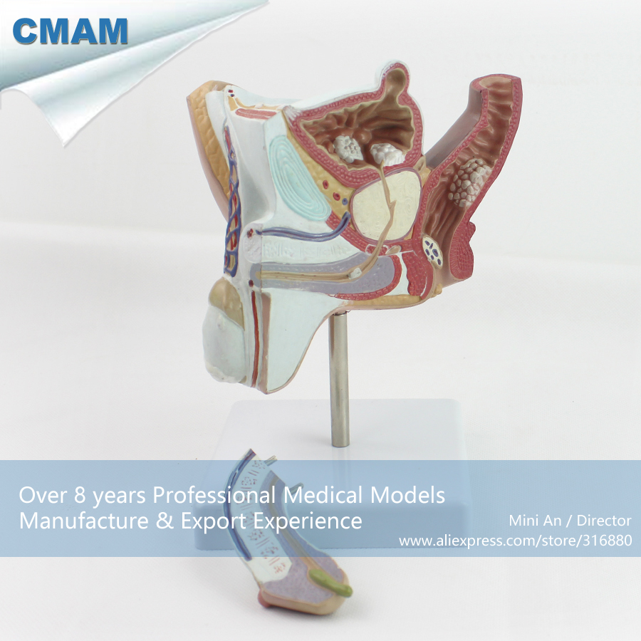 CMAM-ANATOMY18 Pathological Model of the Male Urogenital System Anatomy Model cmam viscera01 human anatomy stomach associated of the upper abdomen model in 6 parts