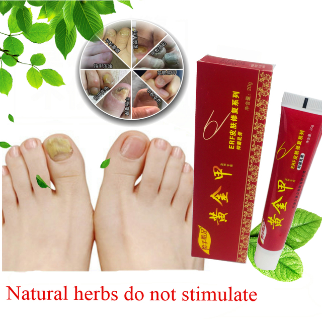 Chinese Medicine Plaster Nail Fungus Treatment Cream Onychomycosis ...