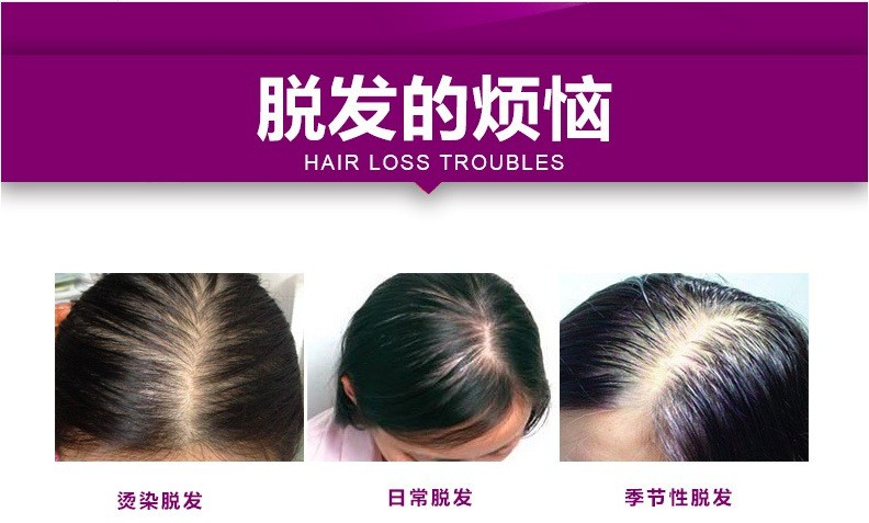 decc1ddbe4b BEACUIR New 50ML Original Herbal Hair Growth Products Essential oil Essence Hair  Growth Treatment Faster Stop Hair Loss Serum