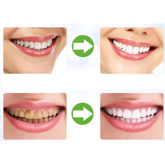30g De Clareamento Dos Dentes Em Po Organico Natural Ativado Carvao