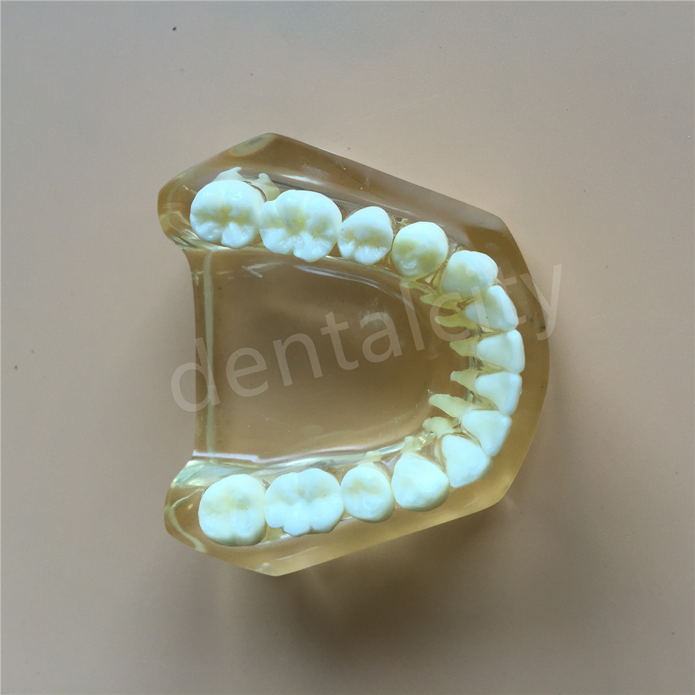Dental Implant model with bridge and caries 1 implant dental tooth teeth model dental implant biomaterials