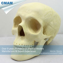 CMAM-TF09 Skull Repair Surgery Practice Model for Medical Education