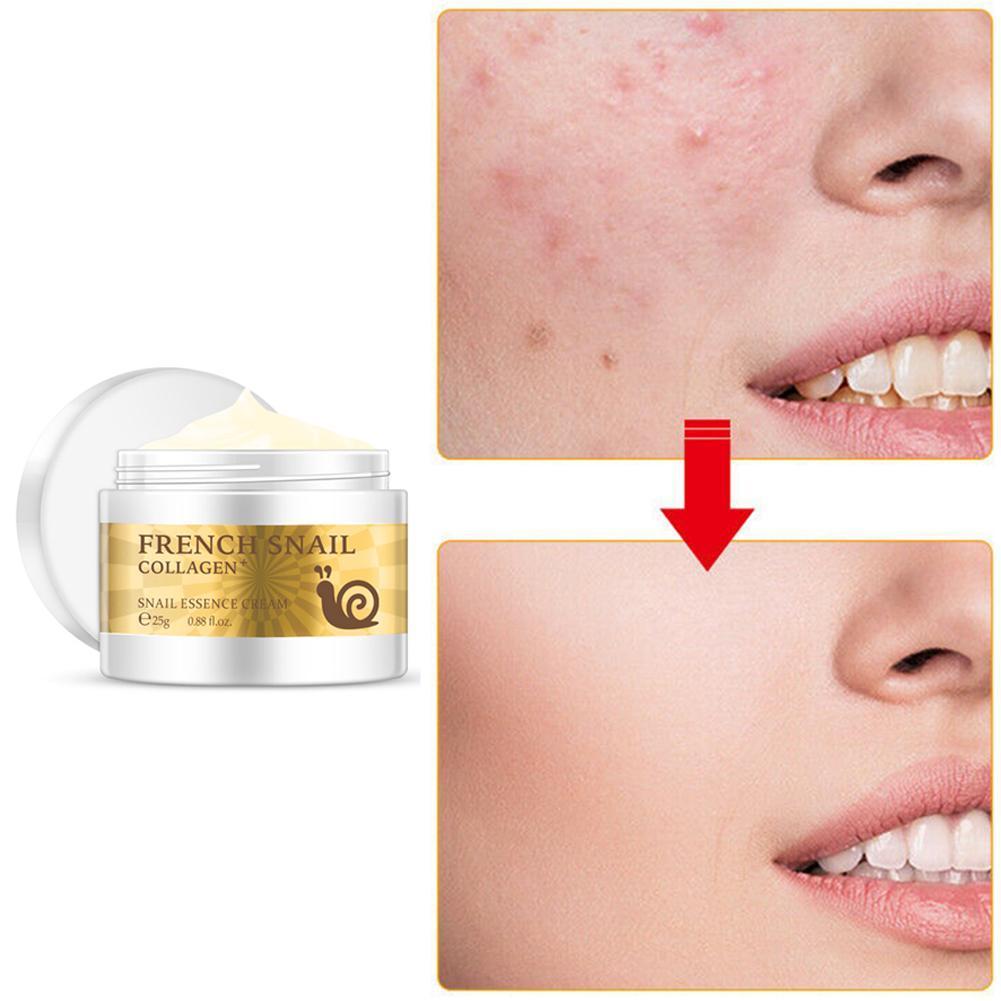 Image 5 - Health Snail Face Cream Hyaluronic Acid Moisturizer anti Wrinkle collagen day cream skin care Anti Aging Nourishing Serum