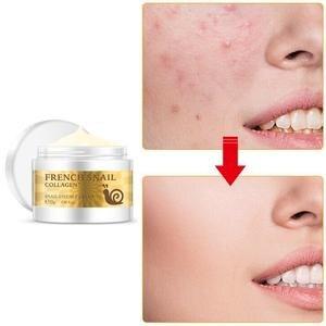 Image 5 - Sağlık salyangoz yüz kremi hyaluronik asit nemlendirici kırışıklık karşıtı kollajen gündüz kremi cilt bakımı anti Aging besleyici Serum