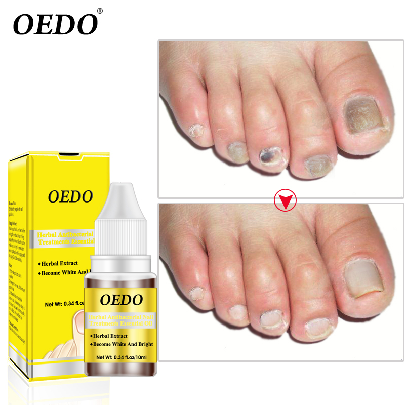Herbal Antibacterial Nail Treatments Essential Oil Herbal Extract Nail Fungus Art Repair Tools Foot Nail Care Improve Infection 3