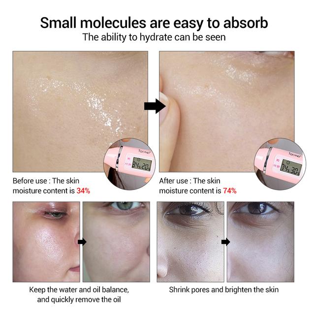 LANBENA Hyaluronic Acid Serum Blackhead Removing Moisturizing Acne Treatment Skin Care Repair Whitening Anti-Aging Winkles 15ml