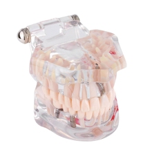 1 Pcs Teeth Model Removable Dental Implant Disease with Restoration Bridge Tooth Dentist for Medical Science Teaching