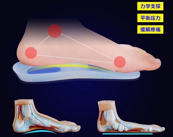 Medical grade silica gel insole for Plantar fasciitis and foot pain health feet care products soft comfortable heel arch support