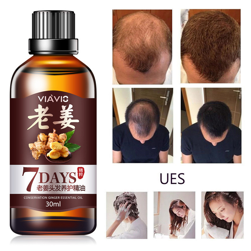 Professional Men Women Hair Growth Hair Essential Oil Hair Care Oil Ginger Essence Hairdressing Dry Damaged Hair Nutrition TSLM1