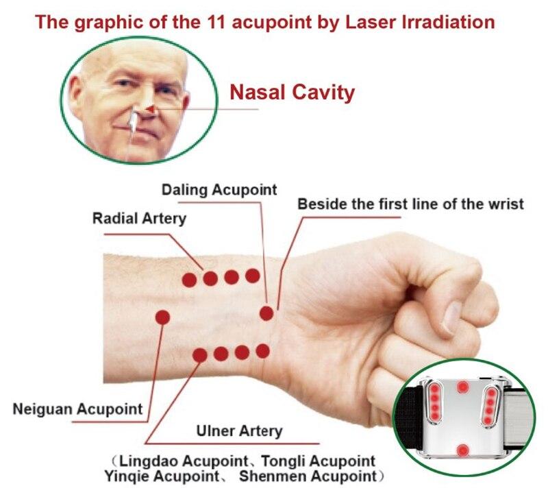 Ниско ниво лазерна терапия 650nm китка - Здравеопазване - Снимка 6