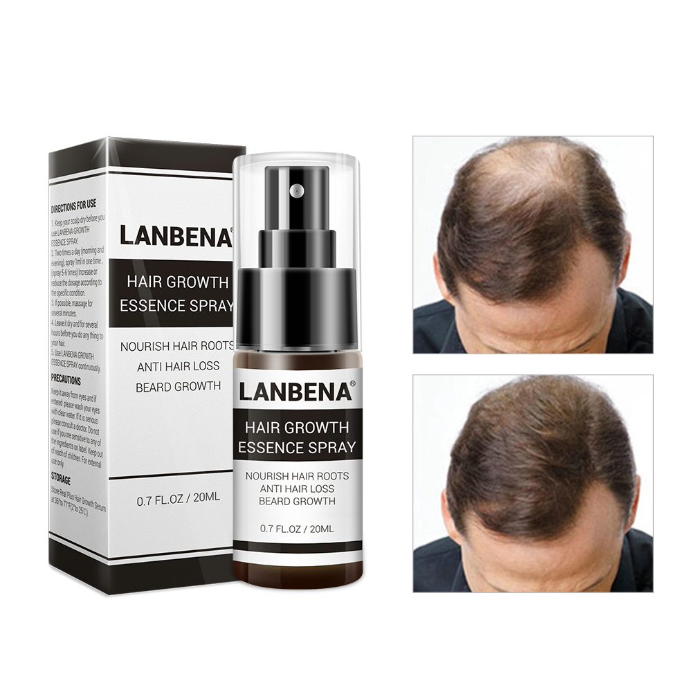 Hair Growth Essence Spray Product Preventing Baldness Consolidating Anti Hair Loss Nourish Roots Easy To Carry Hair Care Product Pakistan