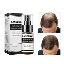 Hair Growth Essence Spray Product Preventing Baldness Consolidating Anti Hair Loss Nourish Roots Easy To Carry Hair Care Product