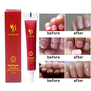 Image 2 - Médecine chinoise plâtre crème de traitement des ongles Onychomycosis Anti Infection des ongles combat les bactéries naturellement pommade