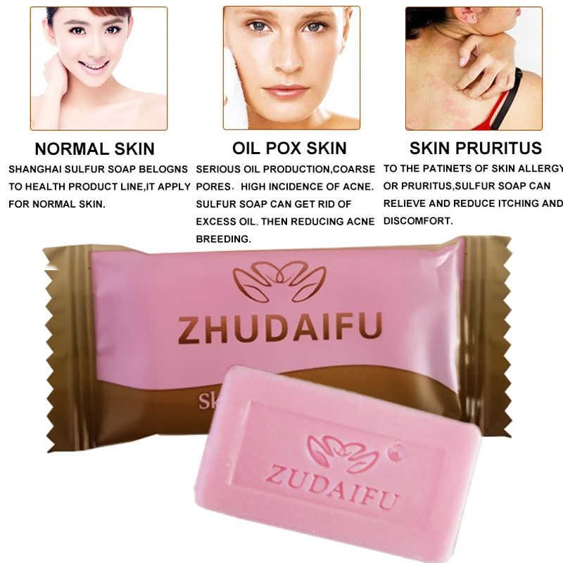 Zudaifu jabón de azufre para las condiciones de la piel acné, psoriasis seborrea Eczema Anti hongos jabón blanqueador de baño jabón champú
