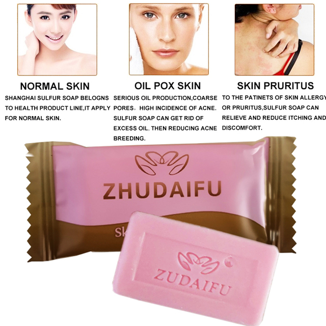 zudaifu Sulfur Soap Skin Conditions Acne Psoriasis Seborrhea Eczema Anti Fungus Bath whitening soap shampoo soap