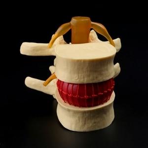 Image 4 - Accesorios médicos, modelo de gastos de envío gratis, columna anatómica, disco Lumbar, hernia, anatomía, herramienta de enseñanza médica