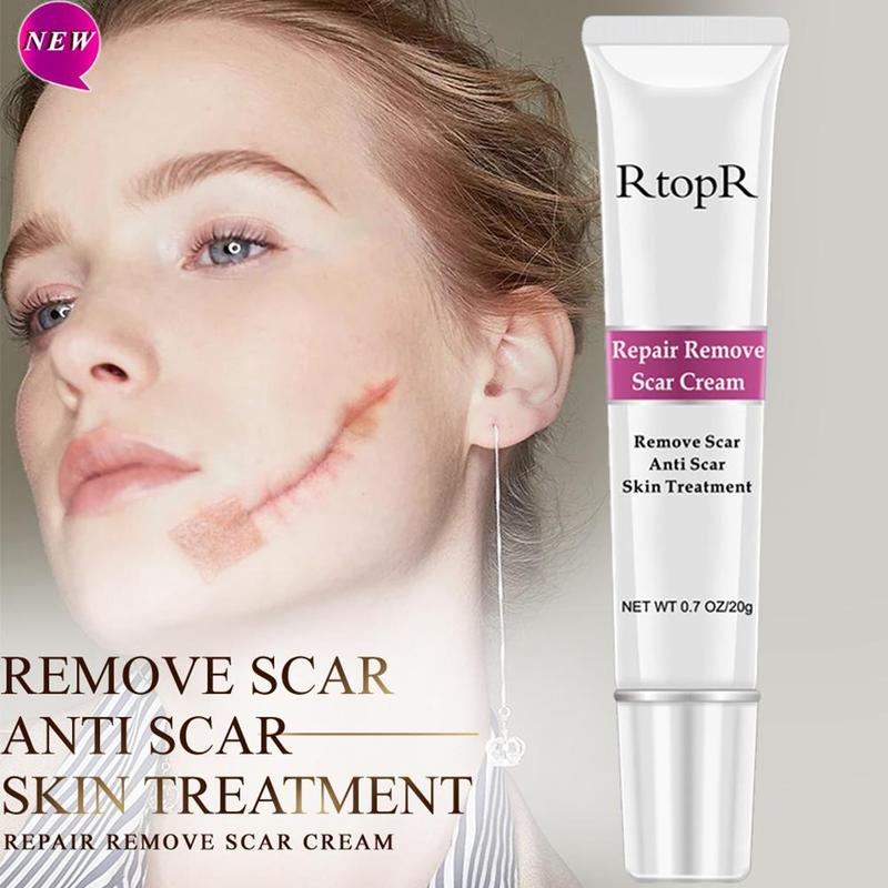 RtopR Stretch Marks Remover Skin Care Scar Cream From Stretch Marks Antiscar Maternity Skin Treatment Scar Removal Cream Bio Oil