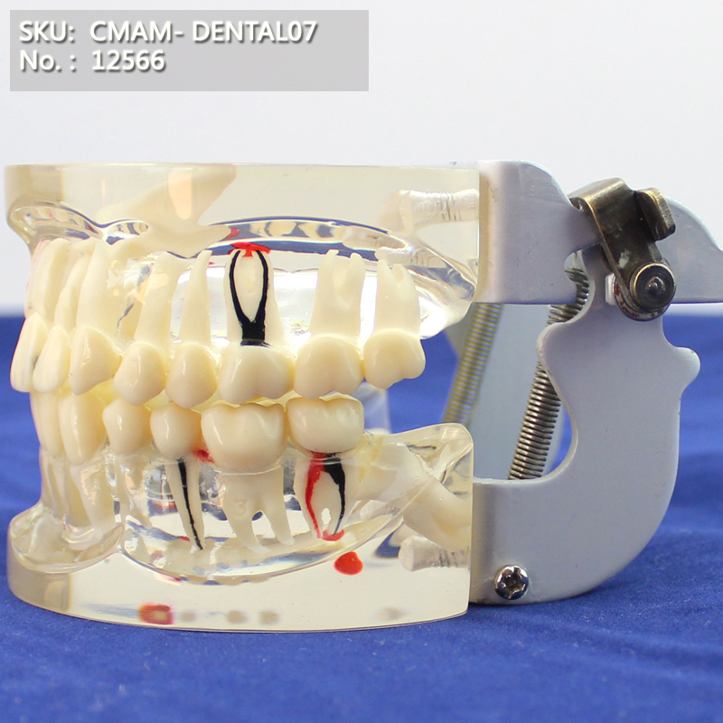 CMAM/12566 Dental- Pathological dental model, demo, Human Oral Dental Medical Teaching Anatomical ModelCMAM/12566 Dental- Pathological dental model, demo, Human Oral Dental Medical Teaching Anatomical Model