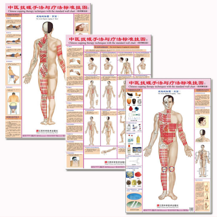 Chinese Cupping(Ba Guan) Therapy Techniques With The Standard Wall Charts (Front/Back/for Common Disease)