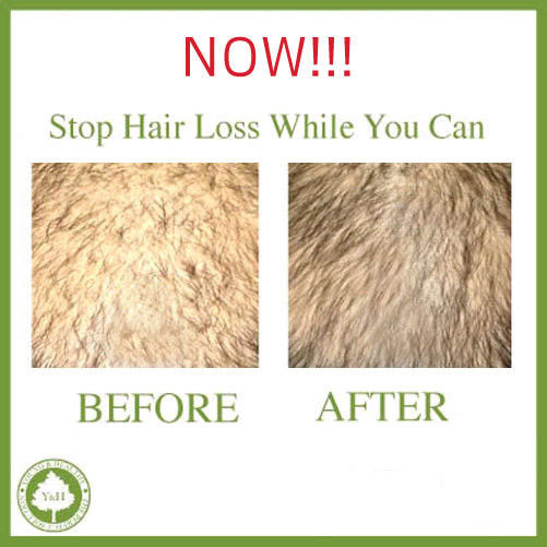 Best Natural Anti Hair Loss Shampoo ! STOP THINNING ! REGROWTH TREATMENT image