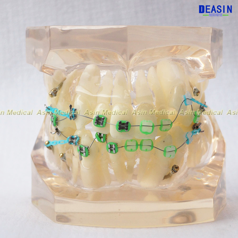 1 pc Orthodontists teeth model With metal & ceramic brackets Ortho Metal dentist patient student learning model Deasin soarday children primary teeth alternating transparent model dental root clearly displayed dentist patient communication