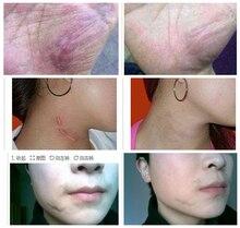 stretch marks,Remove scar lavender essential oil scar ghost scar repair cream burn cream,removedor de cravo,blackhead remover