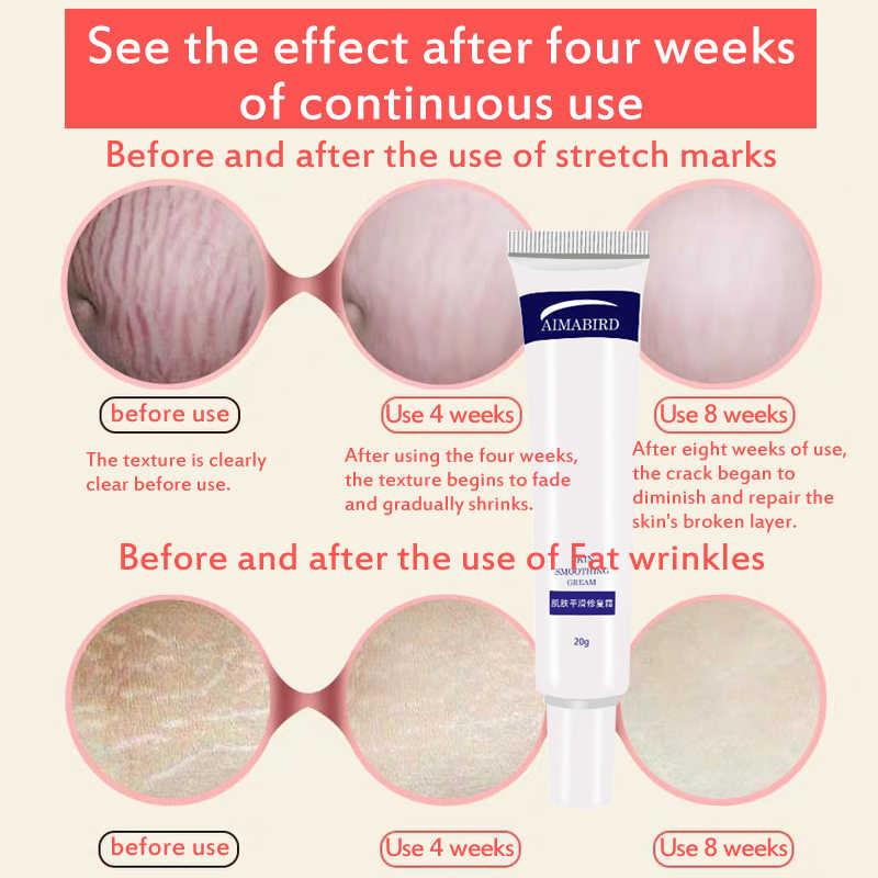 Crema suave para la piel arrugas de grasa eliminación del embarazo a maternidad Reparación DE LA PIEL CREMA para el cuerpo piel suave estrías cremas para eliminar cicatrices