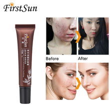Herbal Acne Scar Remover Treatment Skin Lightening Face Whitening Cream Dark Spots Melanin Pimple Pigmentation Removal Cream !