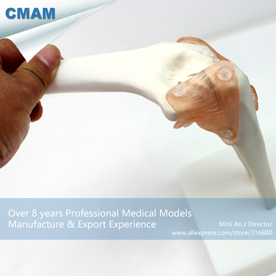 CMAM-JOINT10 Life-Size Elbow Joint ,  Medical Science Educational Teaching Anatomical Models cmam urology04 life size human anatomical skeleton female urogenital medical science educational teaching anatomical models