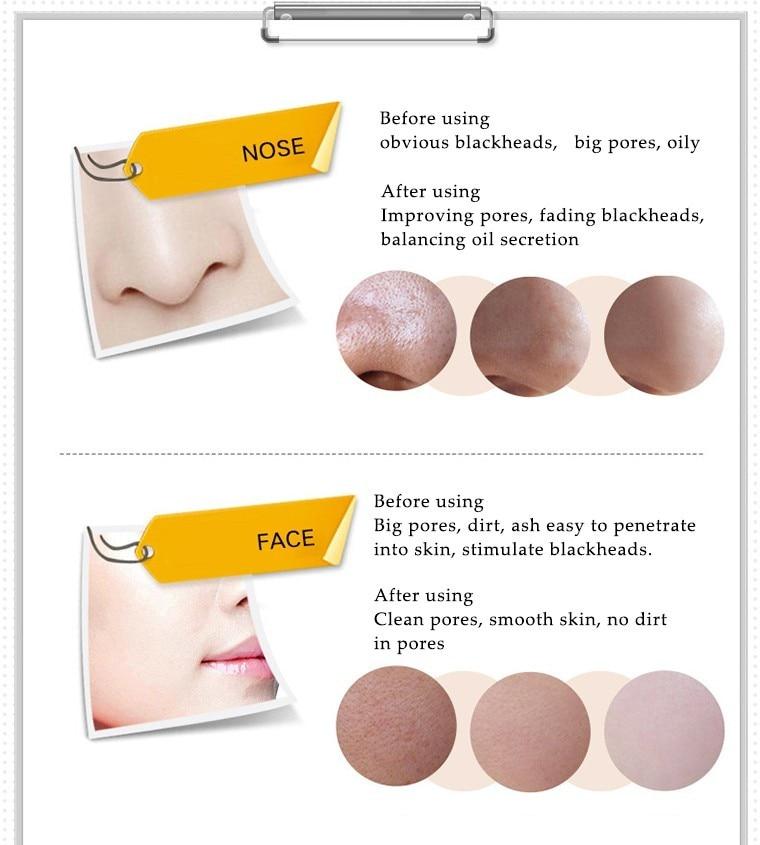 Cabeça Preta Lama Negra Máscara Facial Beleza Skincare